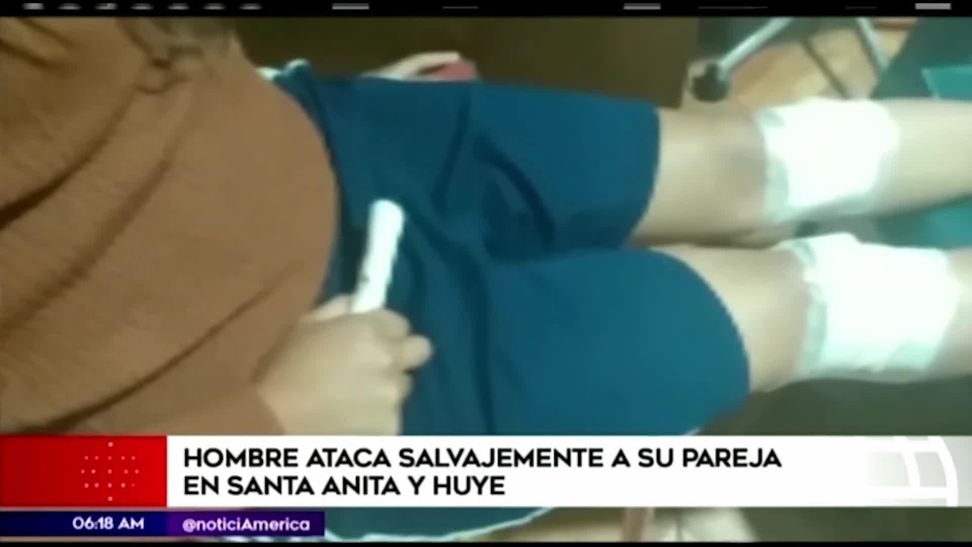 Santa Anita: hombre atacó con navaja a su enamorada y luego escapó