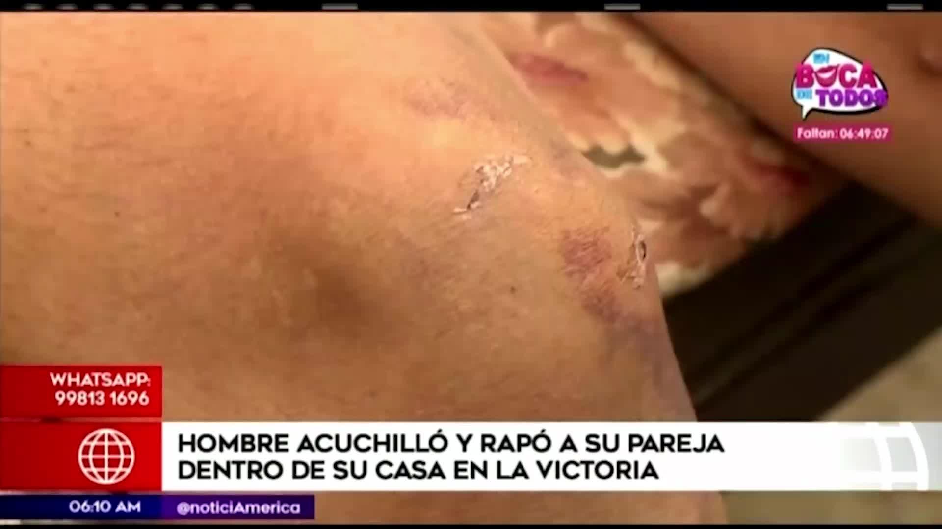 Sujeto acuchilló e intentó matar a su pareja en La Victoria