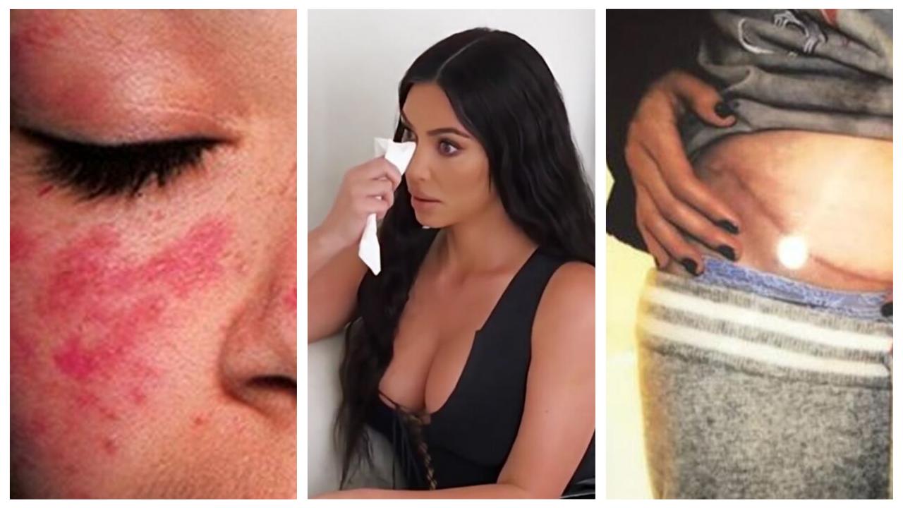 Lupus: ¿En qué consiste la enfermedad que alarma a Kim Kardashian?