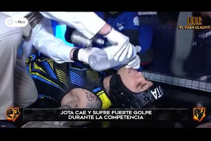Jota Benz sufrió duro golpe en el rostro durante circuito extremo