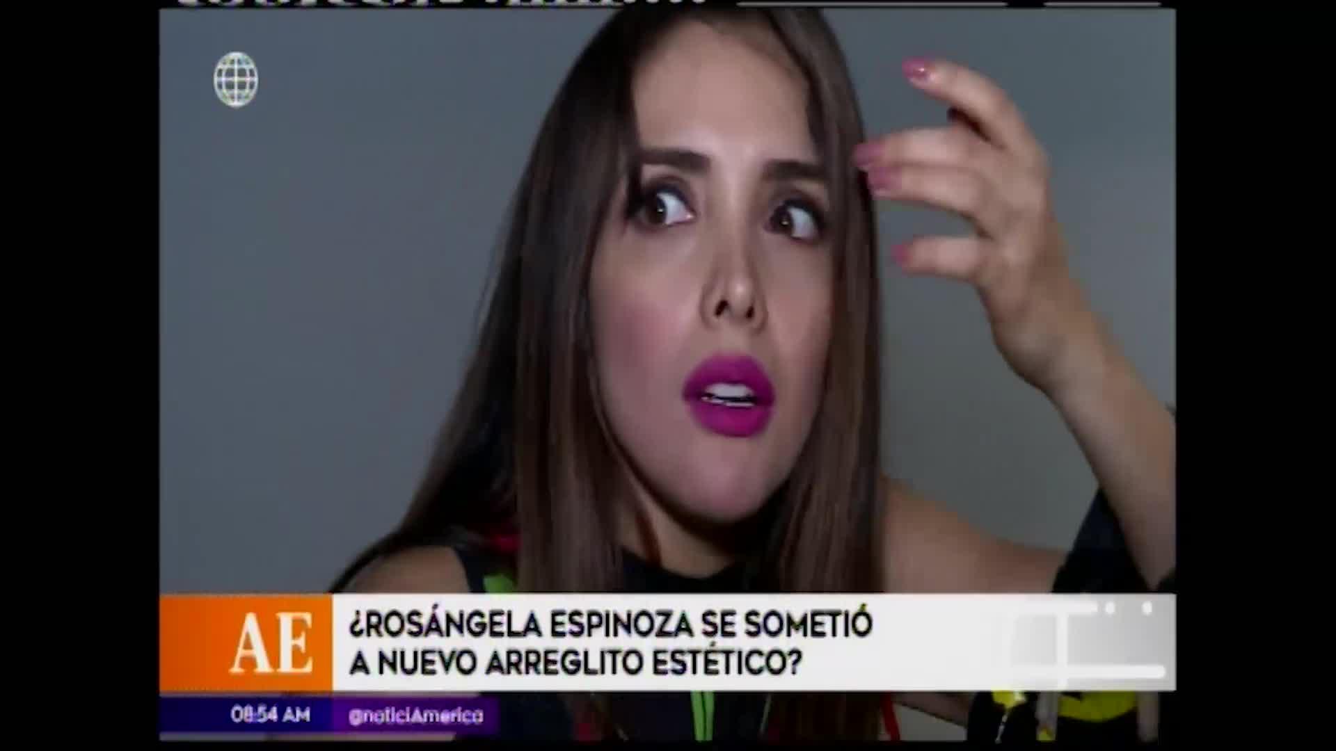 Esto es guerra: Rosángela Espinoza anunció que se someterá a nueva cirugía plástica