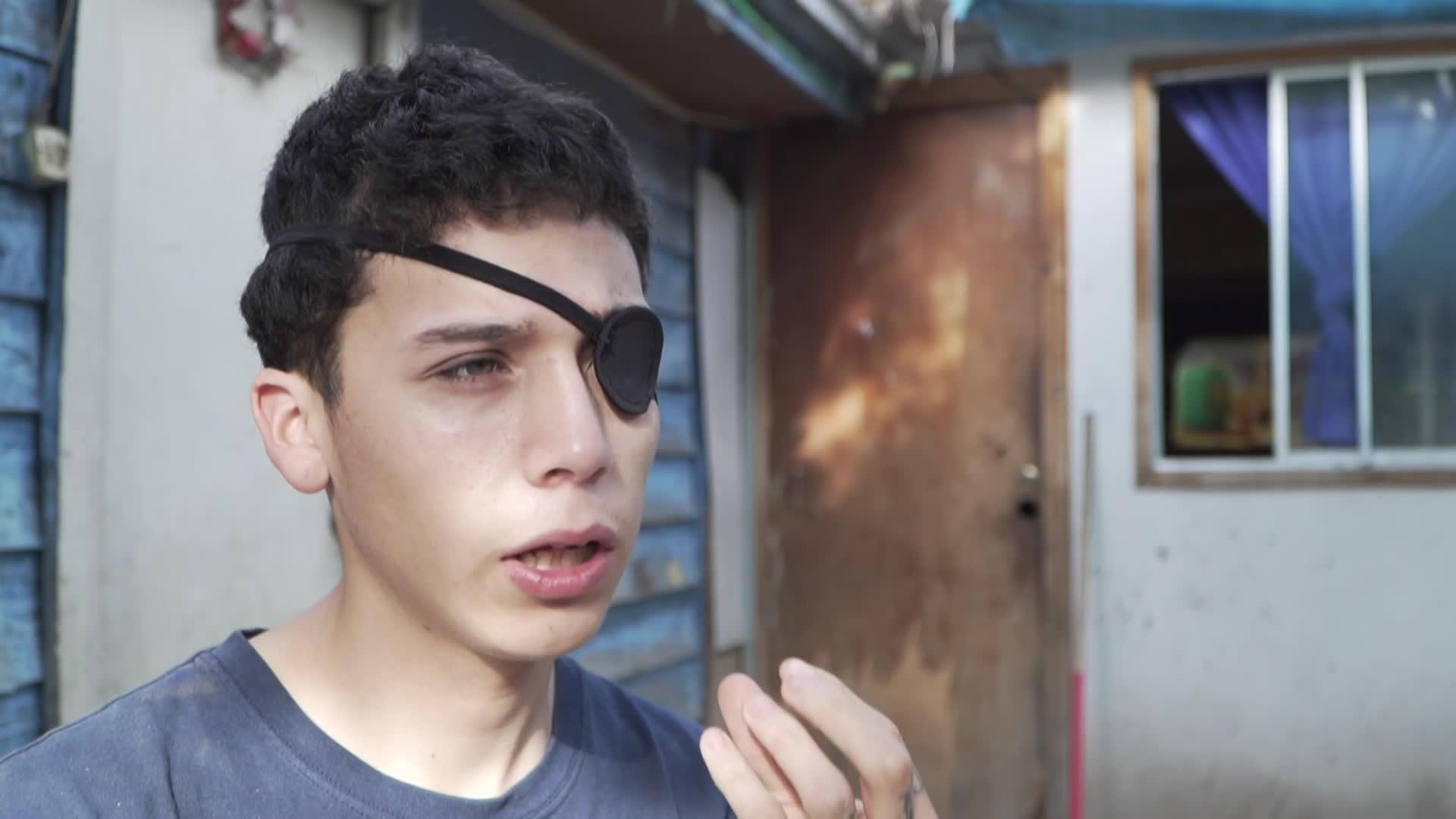 Chile: lesiones oculares y ceguera, marcas indelebles de las protestas