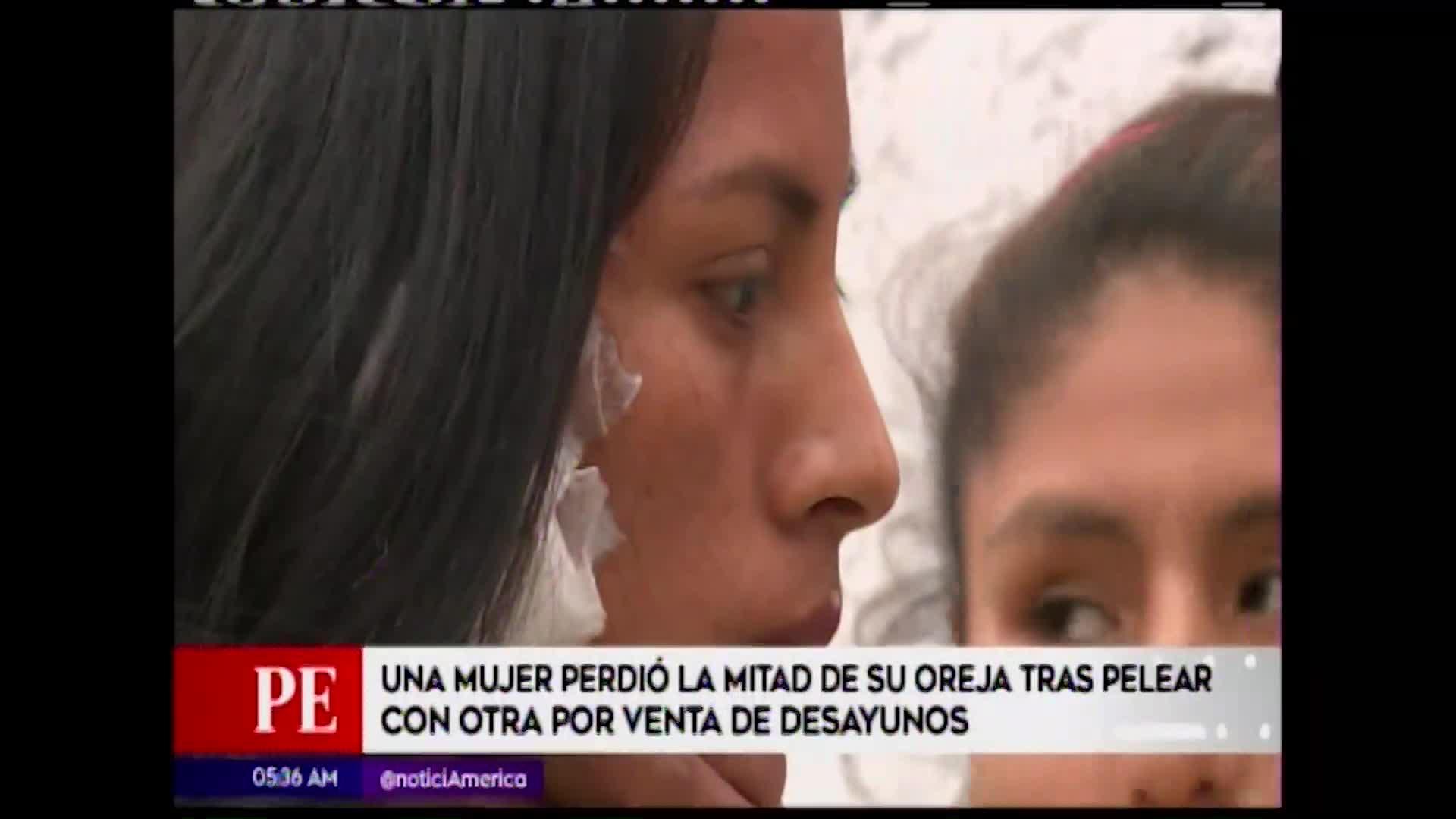 Vendedora de desayuno arrancó parte de la oreja a otra mujer por disputa de clientes